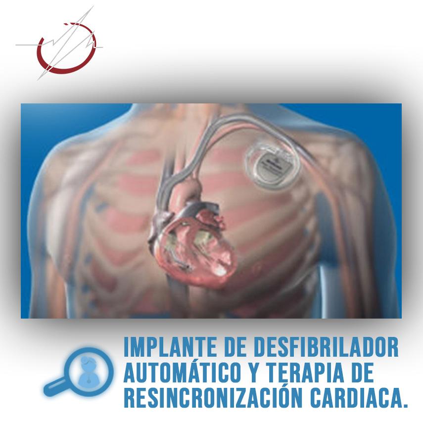 IMPLANTE DE DESFIBRILADOR AUTOMÁTICO Y TERAPIA DE RESINCRONIZACIÓN CARDIACA