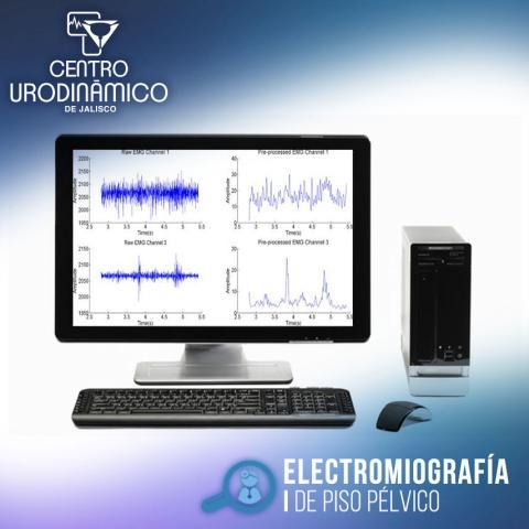 ELECTROMIOGRAFÍA DE PISO PÉLVICO