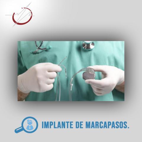 IMPLANTE DE MARCAPASOS