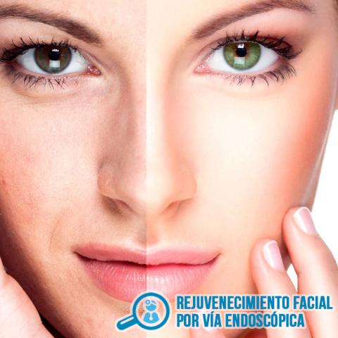 REJUVENECIMIENTO FACIAL POR VIA ENDOSCOPICA