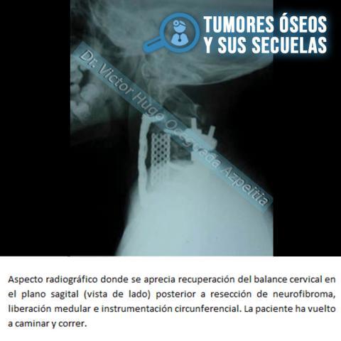 TUMORES ÓSEOS Y SUS SECUELAS