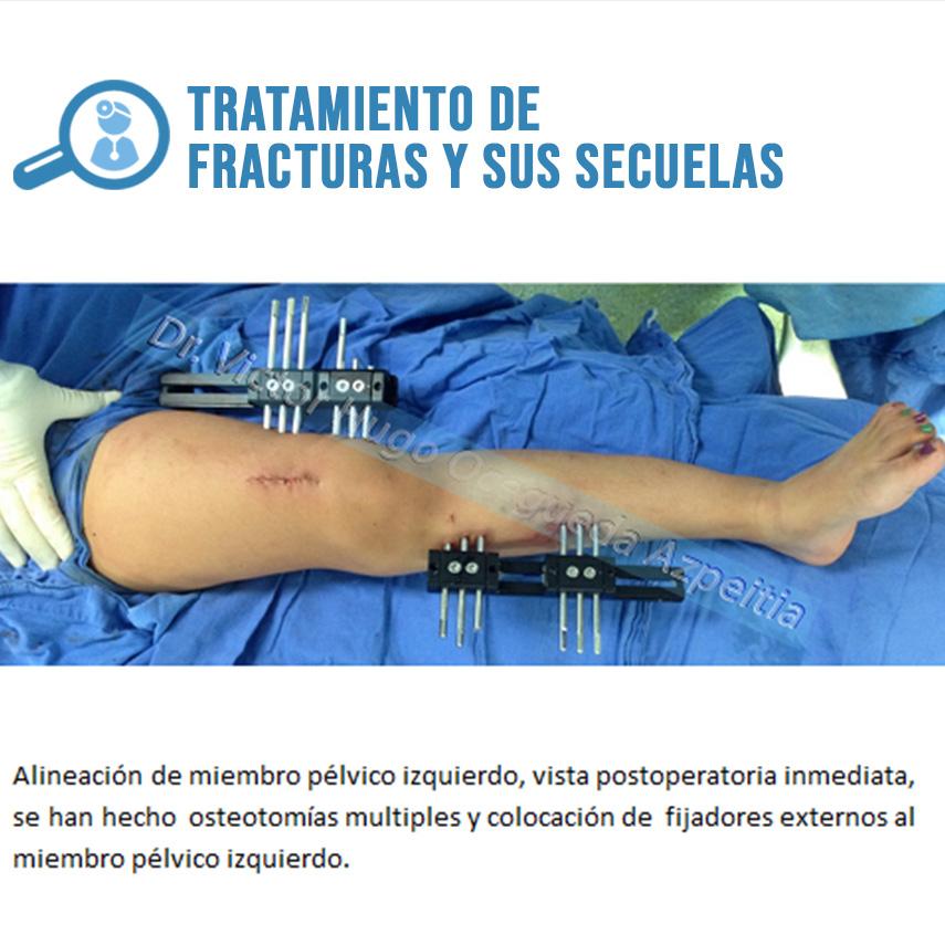 TRATAMIENTO DE FRACTURAS Y SUS SECUELAS